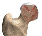 Головка бедренной кости с признаками отека thumbnail