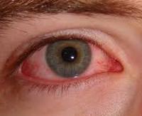 Лечение синдрома красного глаза thumbnail