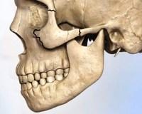 Перелом скуловой кости