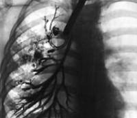 Дифференциация хронического бронхита и бронхоэктатической болезни thumbnail