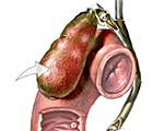 Пролежень стенки желчного пузыря thumbnail