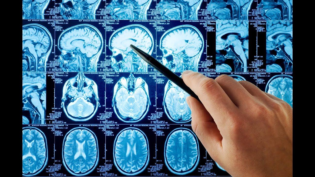 Тремор головы - причины, диагностика и лечение