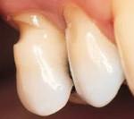 Как лечить клиновидный дефект зубов: причины, лечение, фото, профилактика