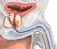 Склероз предстательной железы