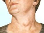 Лечение зоба щитовидной железы: можно ли вылечить без операции и в каких случаях хирургическое вмешательство обязательно