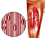 Миофасциальный синдром пояснично крестцового отдела позвоночника