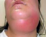 Флегмона шеи - причины, симптомы, диагностика и лечение