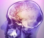 Ишемия головного мозга 2 стадии симптомы и лечение