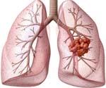 Как еще называют рак легких