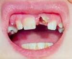 Травмы зубов, классификация травм зубов, острые травмы зубов у детей: травмы молочных зубов, травмы передних зубов