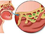 Этмоидит: симптомы и лечение у взрослых