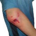 Внутрисуставной перелом коленного сустава