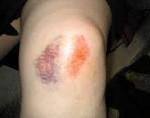 6 Причин возникновения гематомы в колене и ее лечение