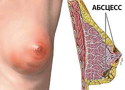 Абсцессы молочной железы