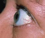 Выпученные глаза при щитовидке и другие глазные симптомы