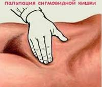 Сигмоидит