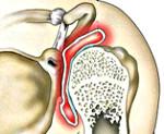 Изображение - Синовит плечевого сустава что это такое 0a5ba1774868ea0a741b5eac0902bf81