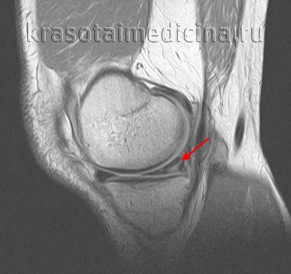 МРТ коленного сустава. Разрыв заднего рога медиального мениска.
