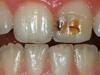 Заболевания твердых тканей зуба