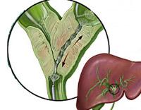Рак внепеченочных желчных путей