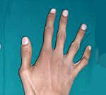 Синдром Марфана - ДНК-диагностика Синдром Марфана