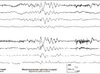 Доброкачественная миоклоническая эпилепсия младенчества
