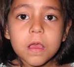 Аденоидит у детей чем опасен и как лечить