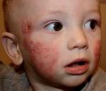 Профилактика атопического дерматита у детей