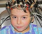 Резистентная энцефалопатия у детей. Что такое энцефалопатия головного мозга? Симптомы у новорожденных