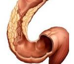 Сигмоидит: виды, симптомы и лечение патологии