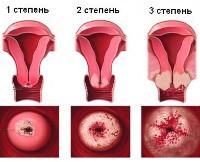 Рак шейки матки при беременности