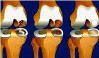 Процедура Артропластика коленного сустава
