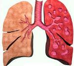 Как лечить бронхоэктазы легких