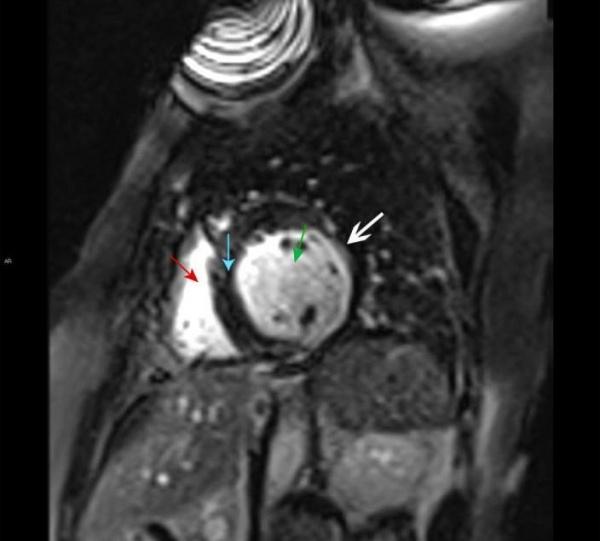 МРТ сердца. Правый желудочек (красная стрелка), левый желудочек (зеленая стрелка), межжелудочковая перегородка (синяя стрелка). Позднее контрастное усиление субэндокардиальной зоны левого желудочка, характерное для инфаркта миокарда (белая стрелка).