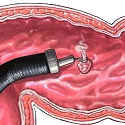 Эндоскопическое удаление полипа