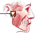 Анкилоз височно-нижнечелюстного сустава (ВНЧС)