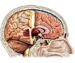 Какие симптомы опухоли головного мозга у взрослых