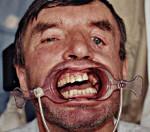 Суббазальный перелом верхней челюсти