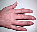 Артрит фаланги пальца руки