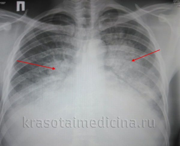 Рентгенограмма ОГК. Выраженный отек легких у пациента с терминальной почечной недостаточностью.