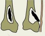 Острый и хронический гематогенный остеомиелит причины и лечение