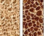 Остеопороз у женщин особенности проявления патологии