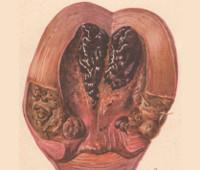 Послеродовые гнойно септические заболевания 5