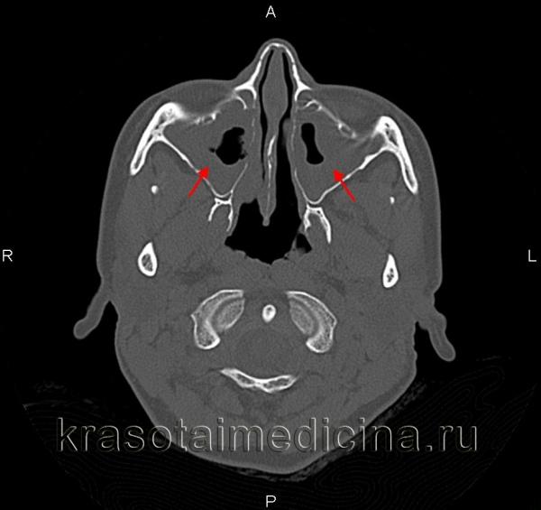КТ придаточных пазух носа. Острый катаральный верхнечелюстной синусит