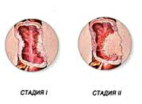 Аденокарцинома толстой кишки