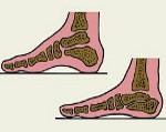 Виды плоскостопия у взрослых как определить. Продольное и поперечное плоскостопие: симптомы и лечение, фото. Плоскостопие