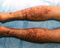 Симптомы и признаки различных форм васкулита
