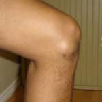 Яркие симптомы и лечение бурсита коленного сустава
