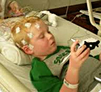 Детская абсансная эпилепсия