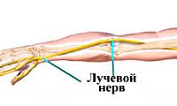 Невропатия лучевого нерва